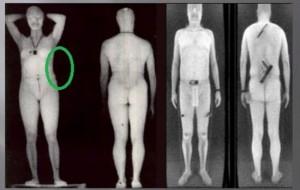 tsa body scanner